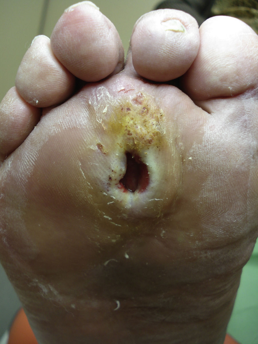 Los medios públicos de la várice varicosa de las extremidades inferiores