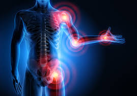 dolor-neuropatico