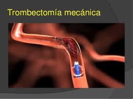 trobectomia