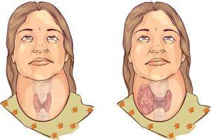 tiroides-y-depresion