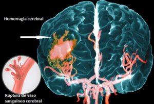 ictus-hemorragia