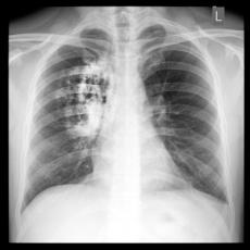 cancer-de-pulmon